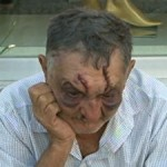 Suspeito de desfigurar rosto de idoso de 74 anos é preso na BA