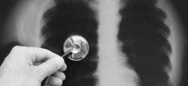 Índice de doenças respiratórias aumentou consideravelmente nos últimos dias em Alta Floresta