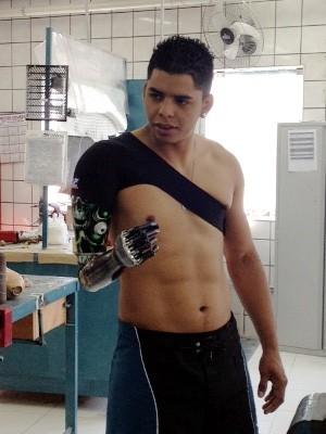Ciclista da Paulista recebe prótese definitiva