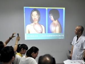 Cirurgia de reconstituição de face2