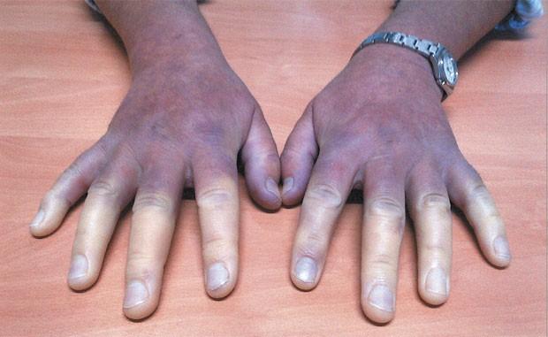 mulher fica com os dedos brancos